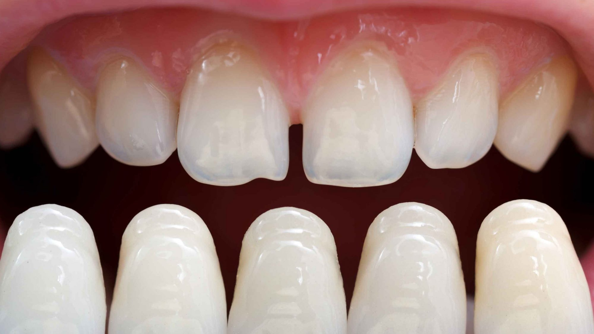 dental crowns front teeth before and after Lovely Porcelain veneers are thin shells of ceramic that bond directly to