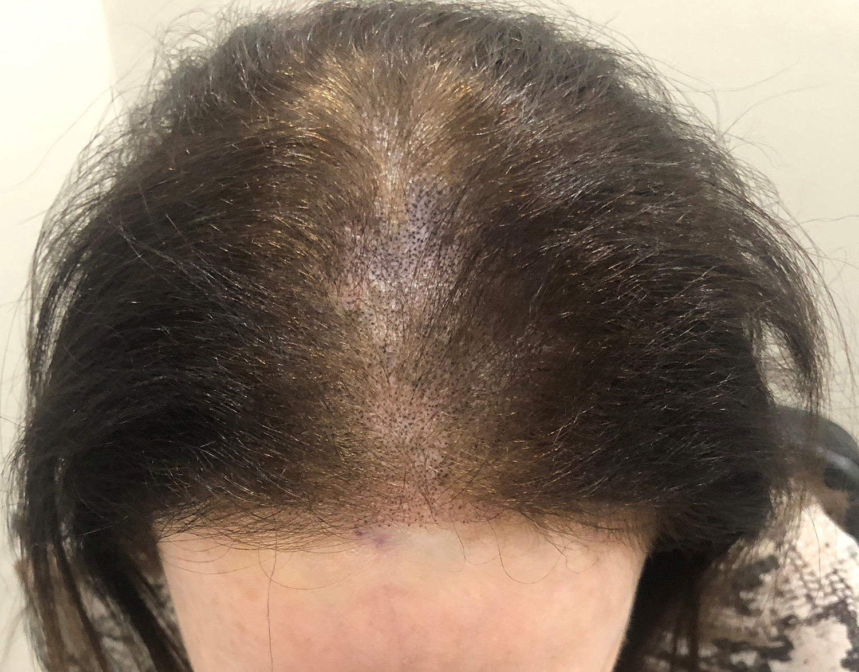 different-scalp-treatment